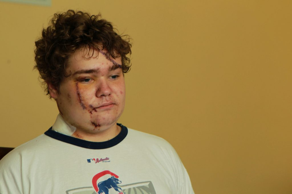 Andrew Wegrzyn of Chicago, Illinois, shows his facial and scalp injuries he sustained in a car accident in 2011